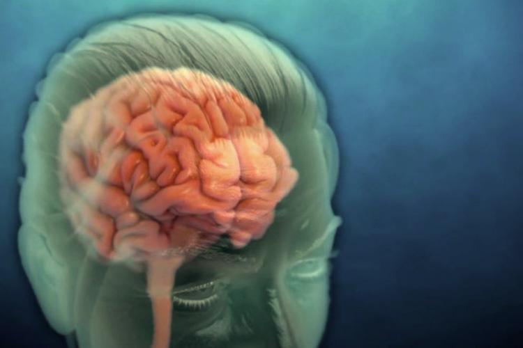 efek covid pada otak