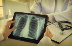 astrazeneca luncurkan aplikasi pulih untuk pasien kanker