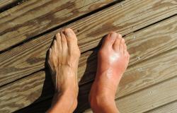 kaki_asam_urat_gout