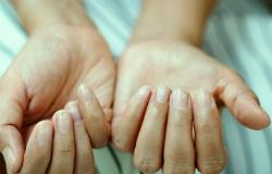 covid nails gejala covid-19 di kuku