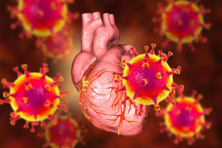 vaksin mRNA sebabkan radang otot jantung